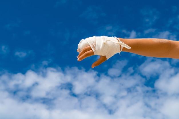 텍스트 복사 공간 파란색 배경에 흰색 캐스트 깨진 손.