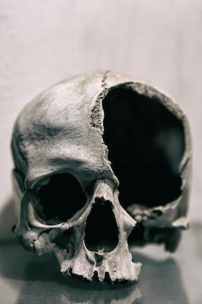Broken human skull close up