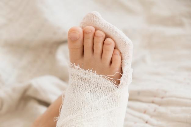 부러진 다리. 발에 깁스를 확대한 모습입니다. 근육을 복구하고 강화하는 운동. 뼈 손상. 응급실에서 외과 의사의 의료