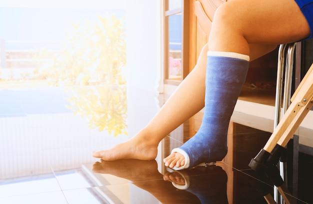 Сломанная нога в гипсовом литье