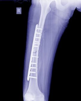 Сломанное изображение рентгеновских лучей ног, рентгеновское изображение ноги перелома с пластиной имплантата и винтом.