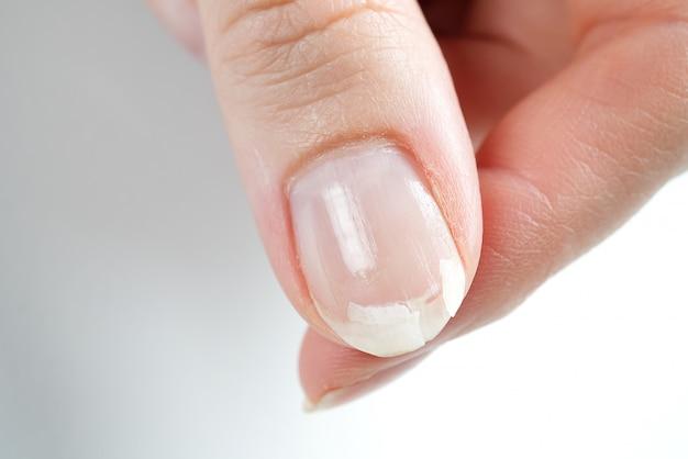 Сломанный гвоздь на женской руке. крупный план сломанного ногтя.