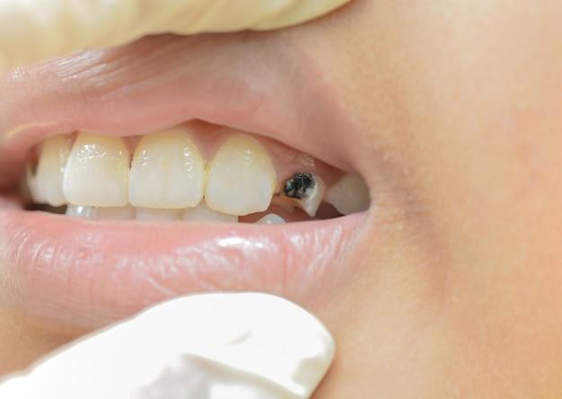 子供の壊れた歯