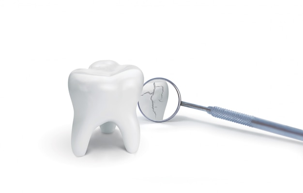 Broken tooth with dental mirror on white