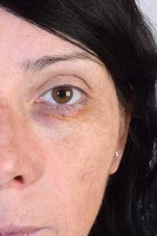 Bruise on a woman's eye