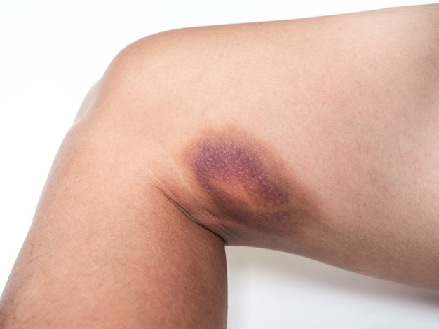 白い壁の太ももの皮膚にあざ.男性の右足の大きな血腫の拡大図。