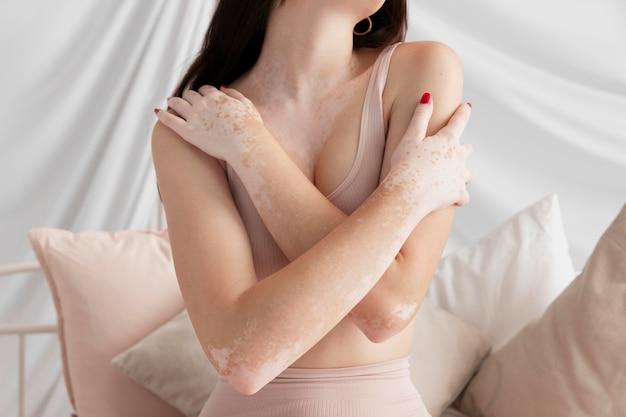 Vitiligo 포즈와 갈색 머리 여자
