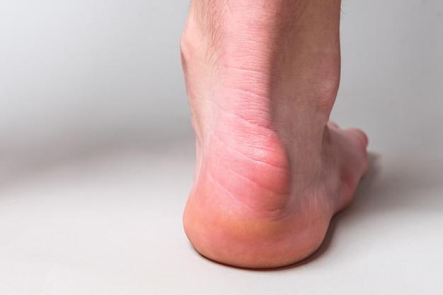 灰色の壁のハグランドの変形と呼ばれる踵骨の後ろの隆起。