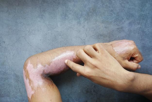 Ожоги на руке человека на черной поверхности