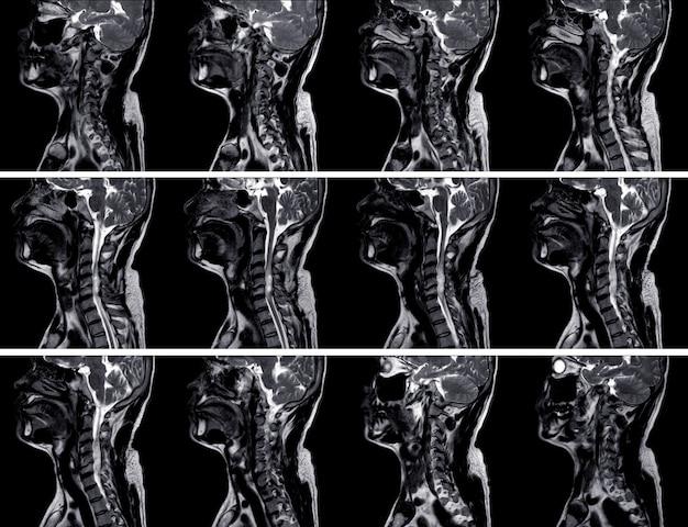 不均一な増強を伴う混合性嚢胞性腫瘤を示すc4-5脊柱管の左後外側側面に質量を示すmri c-脊椎