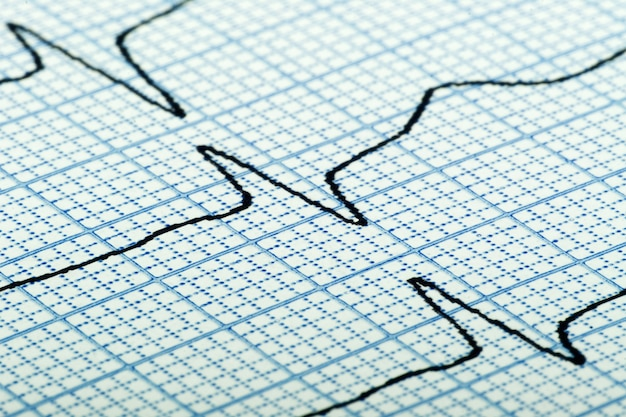 Cardiogram (aka electrocardiogram, aka ecg) of heart beat on blue grid paper