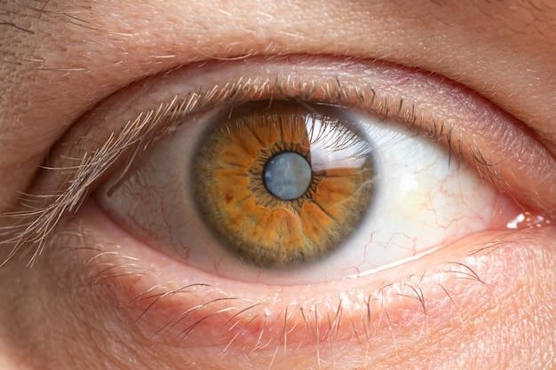 Катаракта человеческого глаза крупным планом