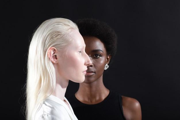白人のアルビノの女の子とアフリカ系アメリカ人の若い女性の肖像画のプロフィールと黒人のフルフェイス