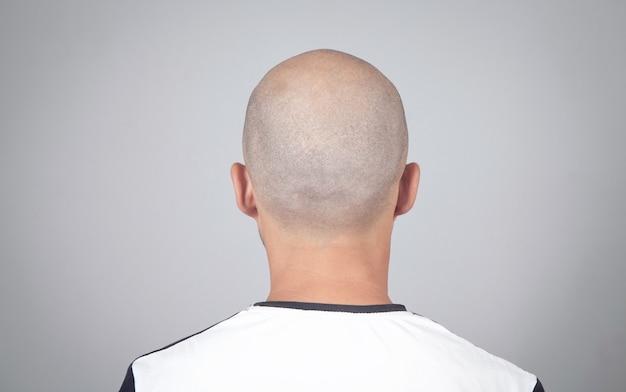 Caucasian bald man in office. hair loss concept
