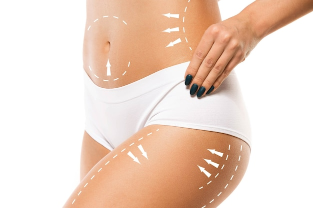 Cellulite removal plan. the black markings on young woman body preparing for plastic surgery. concept of body correction, beauty, surgery procedure, liposuction. fit female body. copyspace.
