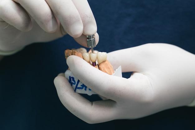 石膏模型にインプラントが埋め込まれたセラミック製の歯。歯科インプラントの補綴物。整形外科歯科のコンセプトです。インプラントのセラミックブリッジ。歯科医の手が歯科用アバットメントで石膏顎を保持しています。