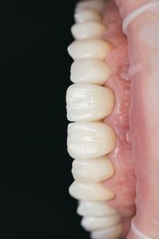 最終バージョンのセラミックジルコニウム。染色および艶出し。精密なデザインと高品質の素材。歯科医療。