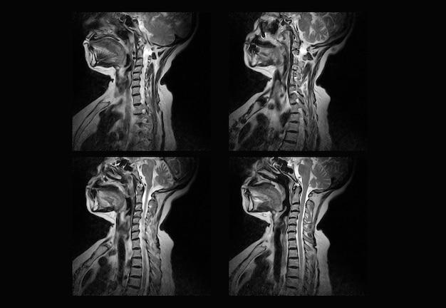 경추 mri 및 ct 스캔 엑스레이 이미지 전문가