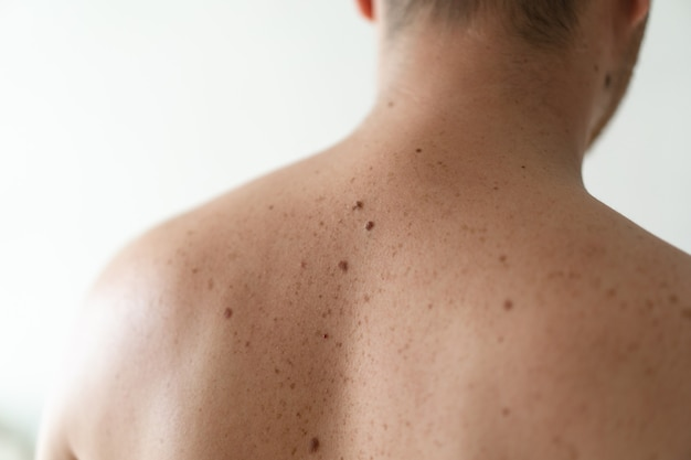 Checking benign moles. close up detail of the bare skin on a man back with scattered moles and freckles. pigmentation. birthmarks on skin