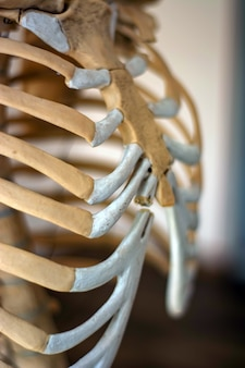 Chest of a human skeleton. one of the ribs is cracked