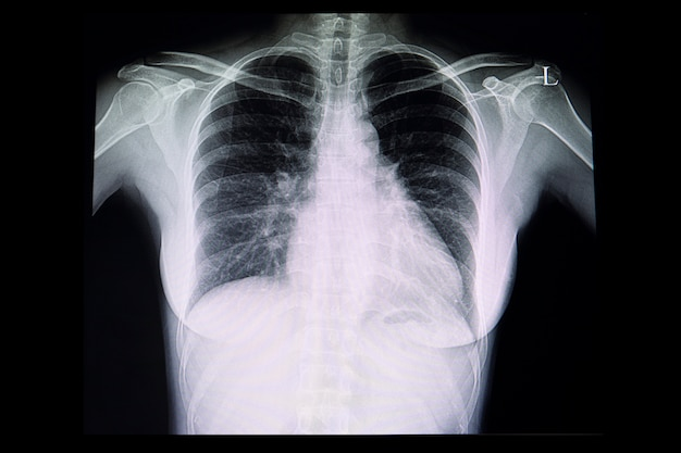 A chest x ray film of a patient with cardiomegaly