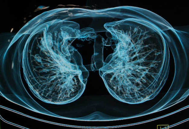 Chest x-rays under 3d image