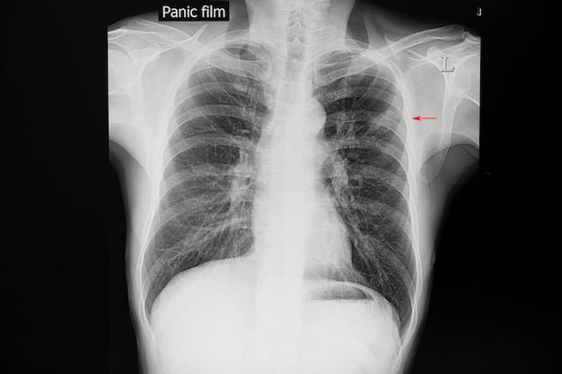 Chest xray film of a patient with tuberculosis