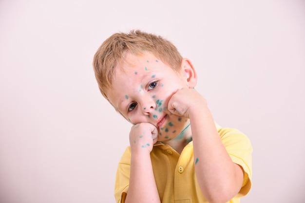 若い幼児、水chickenを持つ少年。水poの病気の子供。子供の体と顔に水variウイルスまたは水chickenが発疹します。