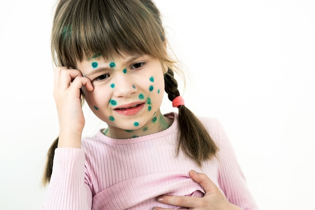 Child girl covered with green rashes on face ill with chickenpox, measles or rubella virus.