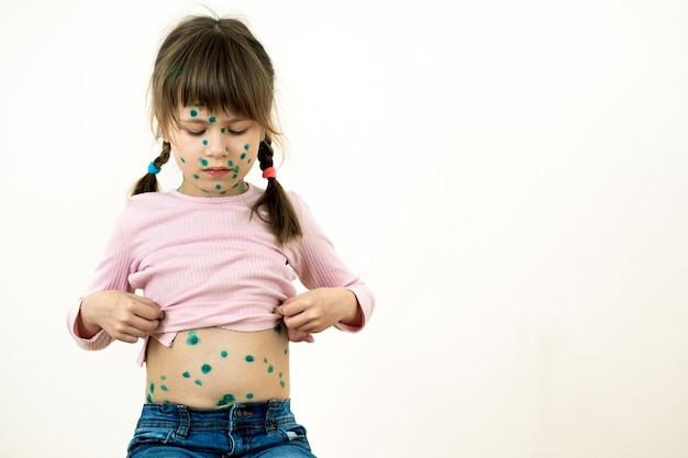 Child girl covered with green rashes on face and stomach ill with chickenpox