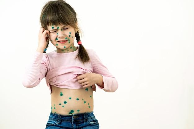 어린 소녀는 수두 바이러스에 걸린 얼굴과 위장에 녹색 발진으로 덮여 있습니다.