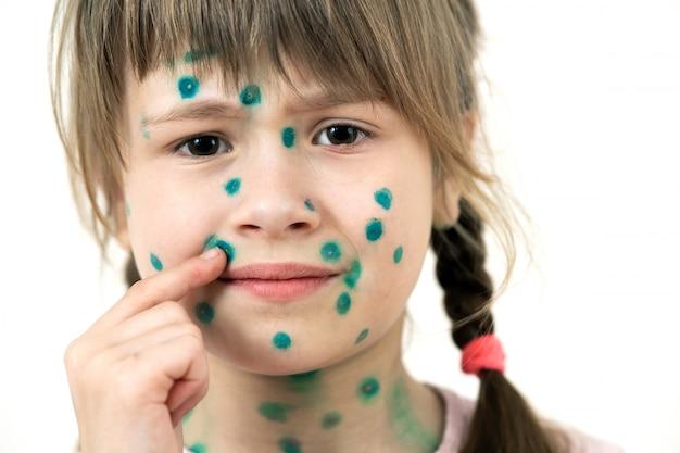 水痘で顔の病気の緑の発疹で覆われている子供の女の子