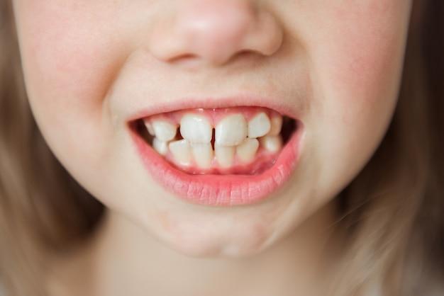 子供の女の子が口を開きます。カーブ大臼歯