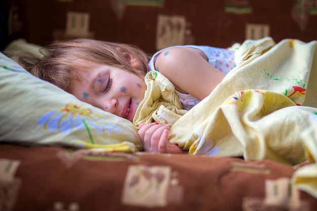 The child having chicken pox lies in a bed and has a rest blindly