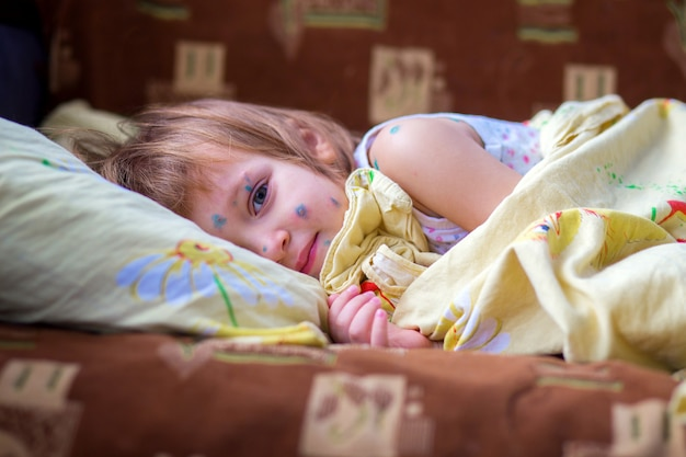 The child having chicken pox lies in a bed and has a rest