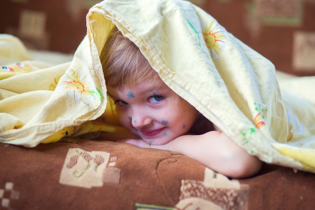 The child having chicken pox lies in a bed