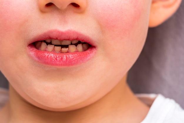 아이 느슨한 치아. 어린 소년 6 세 느슨한 아기 치아 앞니. 아이 치과 의학 및 구강 위생 개념. 아이의 감정. 초상화를 닫습니다.