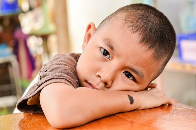 Child making a sad face.boy has a black birthmark on the arm