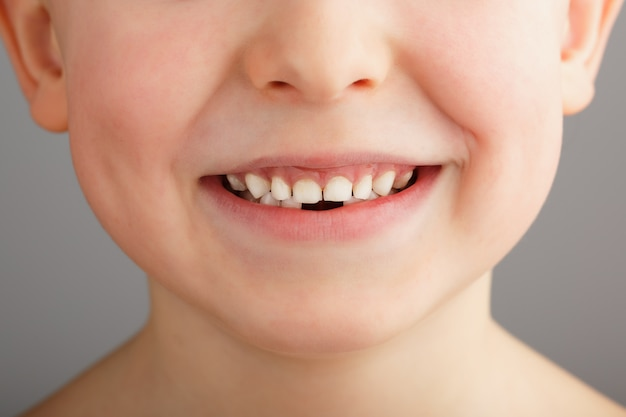 A child's smile without lower baby teeth. a hole in a child's smile. fun concept.