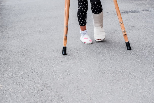 Child using crutches and broken legs for walking outdoor,close up. broken leg, wooden crutches, ankle injury.