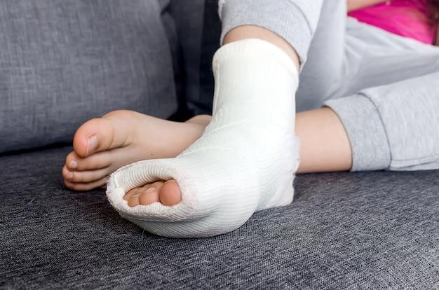 부상 골절, 탈구, 염좌 후 다리 깁스와 발가락에 석고 붕대가있는 어린이.