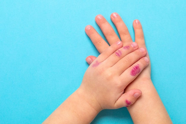 Children hand with dermatitis. eczema on hand. isolated on the blue background