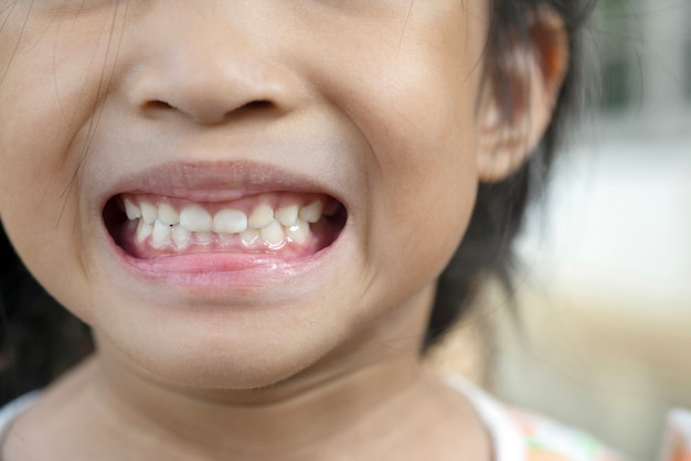 Children teeth, primary teeth, baby teeth, or milk teeth and plaque, tartar for healthy oral