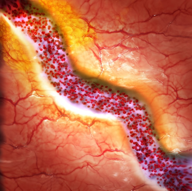 Cholesterol plaque in blood vessel