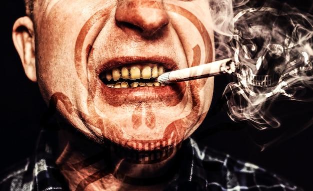 남자의 입에 담배입니다. 플라크 치아 충치 및 paradontosis. 흡연은 충치 문제와 나쁜 미소를 유발합니다. 치과 치료 개념입니다. 해로운 습관. 해골 기호입니다.