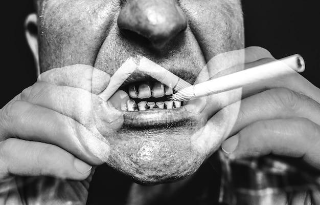남자의 입에 담배입니다. 플라크 치아 충치 및 paradontosis. 흡연은 충치 문제와 나쁜 미소를 유발합니다. 치과 치료 개념입니다. 해로운 습관.