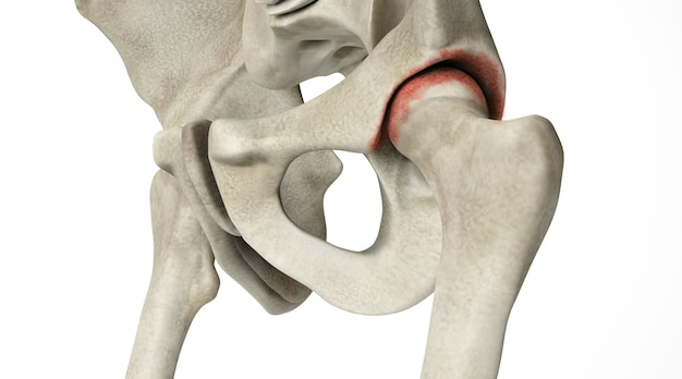 Cinema 4d rendering of diseases of the human hip joint are isolated on a white background