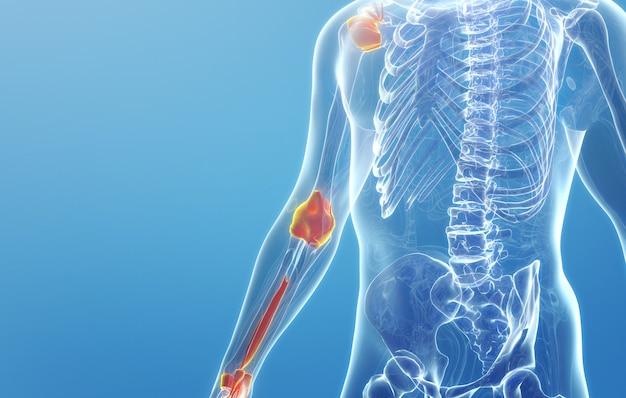 Cinema 4d rendering of man's upper limb joint disease Premium Photo