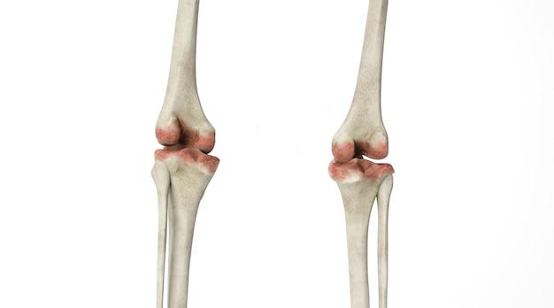 白い背景で分離された人間の関節の骨病変のシネマ4dレンダリング