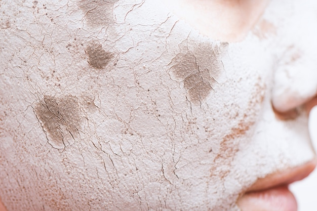 Clay facial mask on female face, close up.